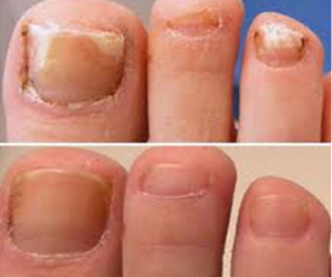 Put This Strong Spice In Your Shoes To Destroy Nail Fungus Fast