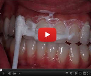 60-Second Trick Rebuilds Your Teeth and Gums Overnight (Users Say It's Better Than Implants)