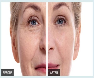 "Ladies everywhere call it ""Botox In A Bottle!"" and it really works…"