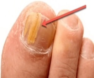 Yellow Toenail? Do NOT Ignore It…
