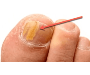How Toenail Fungus Destroys Your Immune System