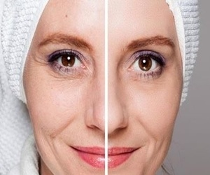 """Ladies everywhere call it """"Botox In A Bottle!"""" and it really works…"""